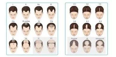你的头发还能抢救一下!实用防脱发指南(快get这篇脱单秘籍)